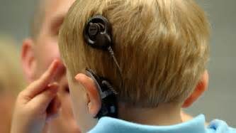 cochlear implants may lead to memory related woes in