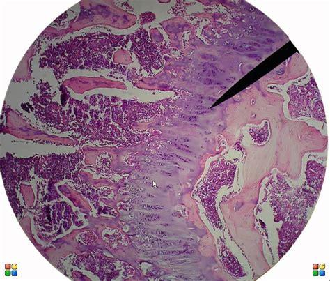 sectioning in histology bone tissue histology avi youtube