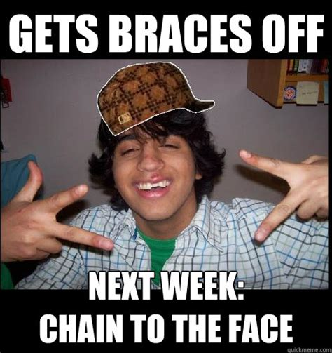 Funny Braces Memes - gets braces off next week chain to the face misc