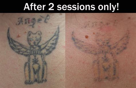 tattoo removal company 100 laser removal at monumental how the
