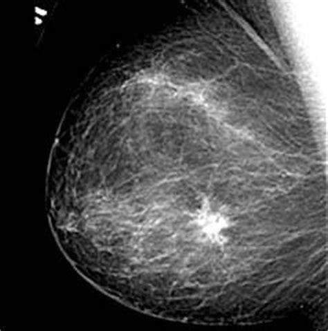 bi test falsi negativi question 4 breast cancer radiological tests for