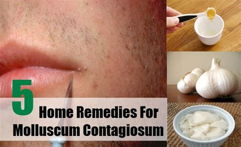 top 5 home remedies for molluscum contagiosum best