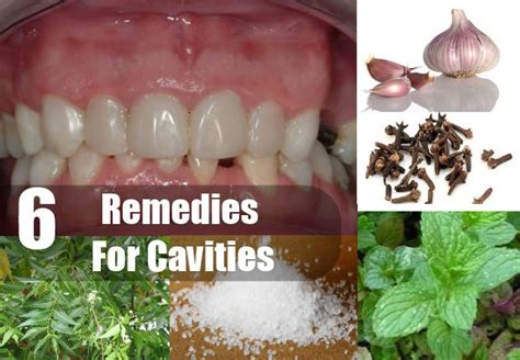 best home remedies for cavities treatments