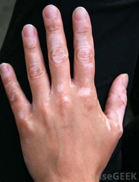 vitiligo images what are the causes of vitiligo with pictures