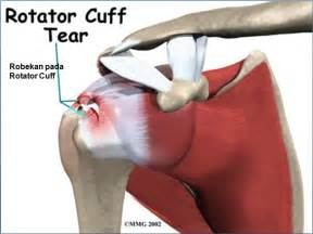 Shoulder joint singapore orthopaedic clinic