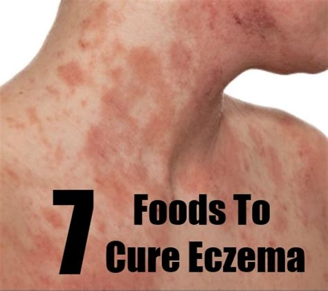 google images eczema eczema d 233 finition what is