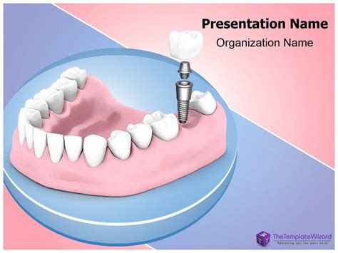 Dental Implant Powerpoint Presentation Template Thetemplatewizard Youtube Free Animated Dental Powerpoint Templates