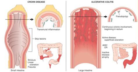 alimentazione colite ulcerosa colite ulcerosa farmaci per la cura della colite