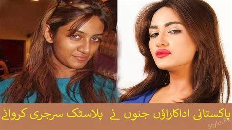 got actress list list of pakistani actresses who got surgeries style pk