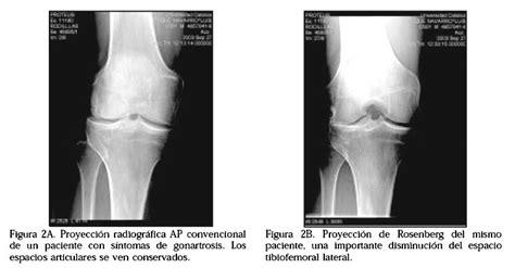 imagenes radiologicas pdf proyecci 243 n de rosenberg en la evaluaci 243 n radiol 243 gica de la