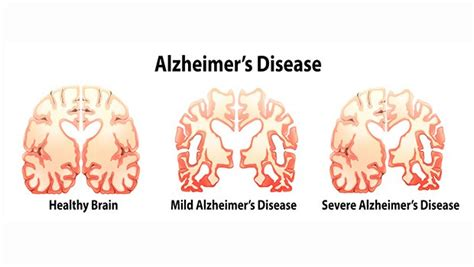 Detoxing From On A 80 Year With Dementia by The Real Cause Of Alzheimer S Disease Revealed Medford