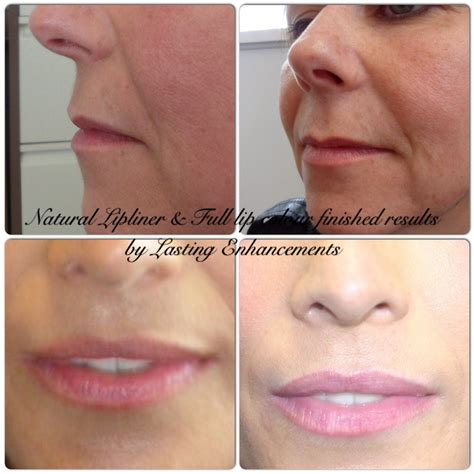 tattoo removal yarm lasting enhancements micropigmentation private medical