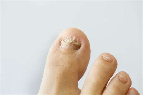 yellow nail beds nail fungus is gross avoid it westport news