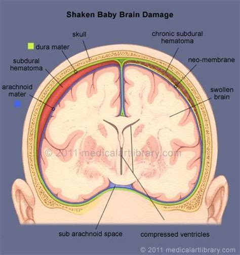 can swinging baby cause brain damage 48 best images about subdural hematoma on pinterest