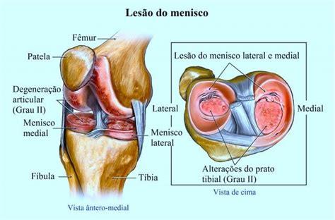 menisco interno les 227 o do menisco do joelho causas sintomas e diagn 243 stico