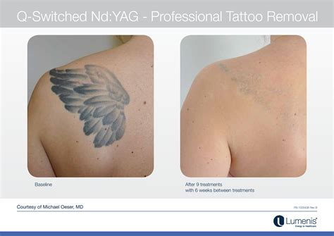 tattoo removal cost in chennai 15 tattoo removal costs 8 best santa claus tattoos