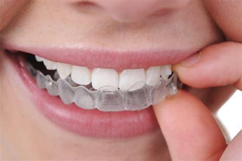 Invisalign 174 kane dental centers