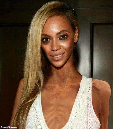 celebrities pictures anorexic celebrities pictures freaking news