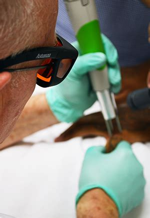 laser tattoo removal training courses laser removal school advanced removal