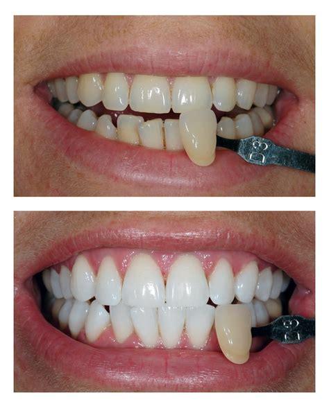 teeth whitening leicester enlighten teeth whitening