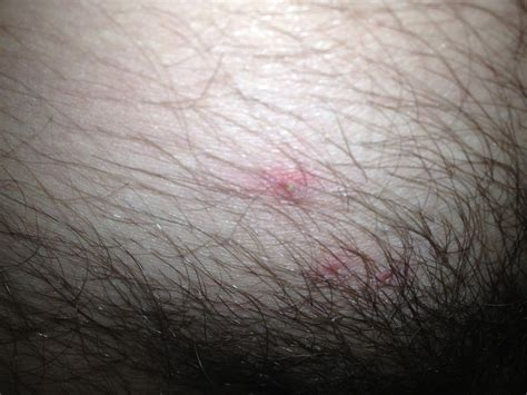 red pubic hair popular pubic hair red red pubis photos raised lump on pubic area