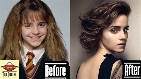 emma watson now and then emma watson then and now youtube