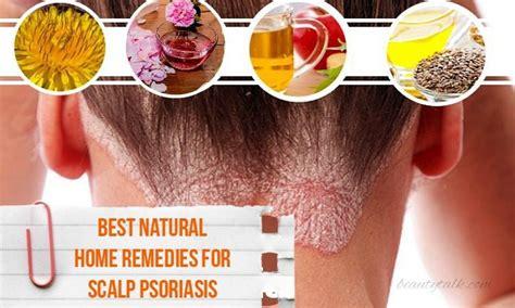 Scalp Psoriasis Home Remedies by 16 Best Home Remedies For Scalp Psoriasis
