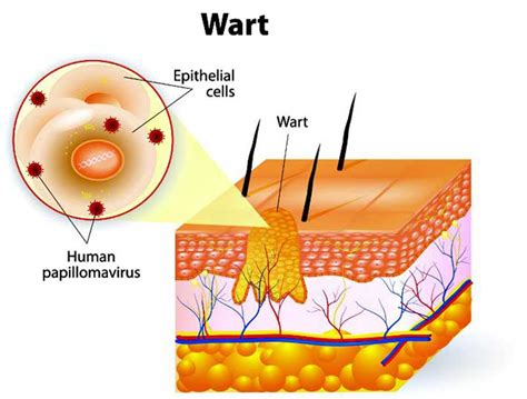 home remedies for planters warts home remedies for plantar warts genius