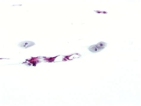 cellule metaplastiche pap test smear adequacy the unsatisfactory smear eurocytology