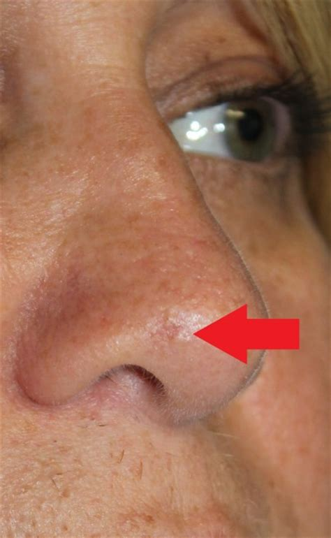 nose on nose skin cancer pictures pictures of skin cancer on the nose quotes
