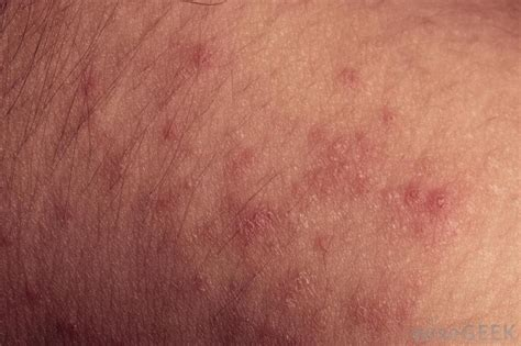 tanning bed rash what are the different causes of a tanning bed rash