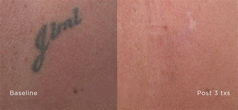 laser tattoo removal seattle laser removal seattle seattle s most advanced laser
