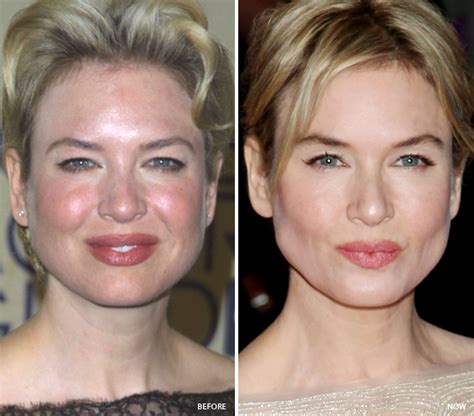 celebrity orange skin celebrities who fixed bad skin adult acne pimples adult