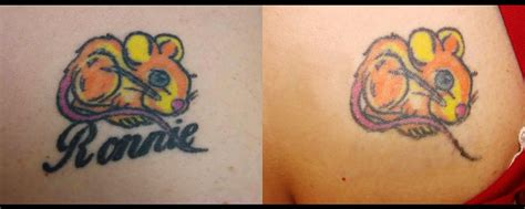plastic surgery to remove tattoo gallery skin procedures metamorphosis plastic surgery