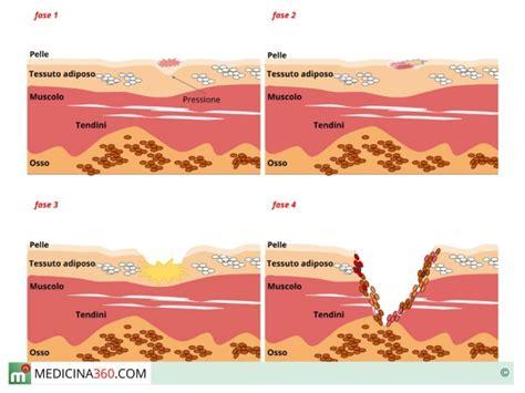 materasso per piaghe da decubito ulcera da decubito