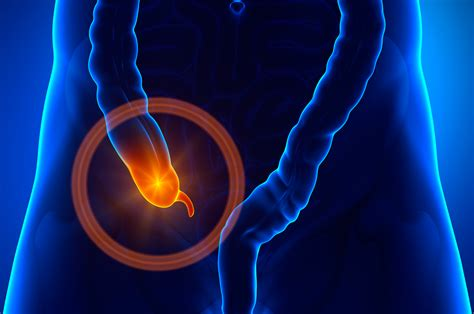 schleim stuhl appendicitis solved in 24 hours humanitas net