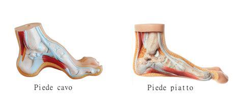 dolore arco plantare interno la fascite plantare orthoplus castellanza