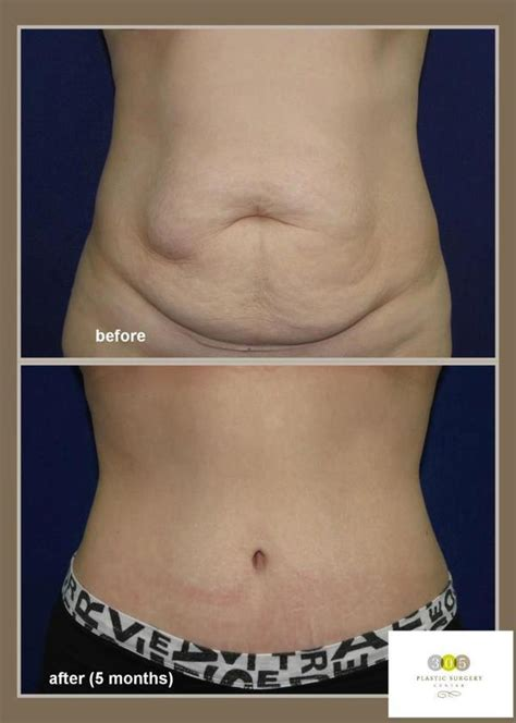 Flabby Tummy After C Section by Post Pregnancy Belly Skin Doctors Answer Your