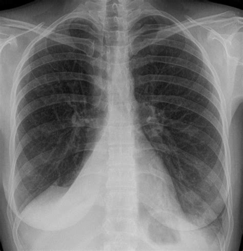 Lung Exclusive L 1 pulmonary atelectasis atelectasis congestive lung collapse