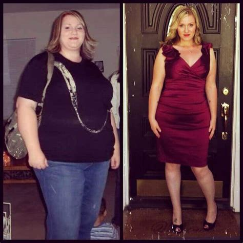 gastric bypass testimonials success stories with before quick weight loss before heart surgery berry blog