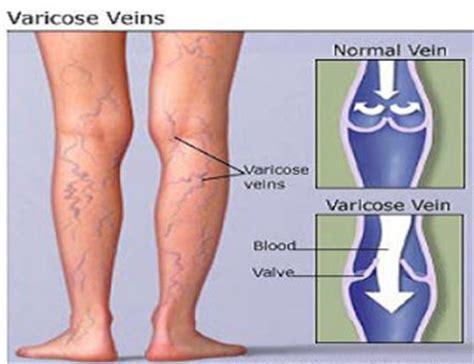 8 Symptoms Of Varicose Veins by Vuoi Perdere Qualche Kg Vuoi Capelli Piu Lunghi