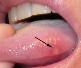White patches on the tongue causes of white fur on the tongue