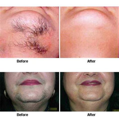 hair removal pics hair removal before and after