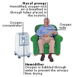 encyclopedia treatment home oxygen therapy aviva