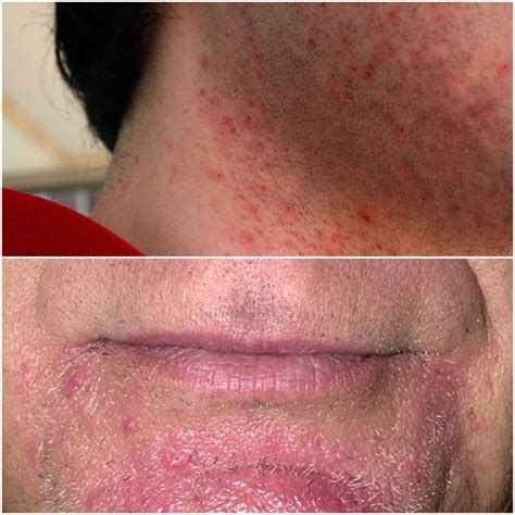 infected hairs on neck electric razor razor burns causes symptoms treatment and prevention