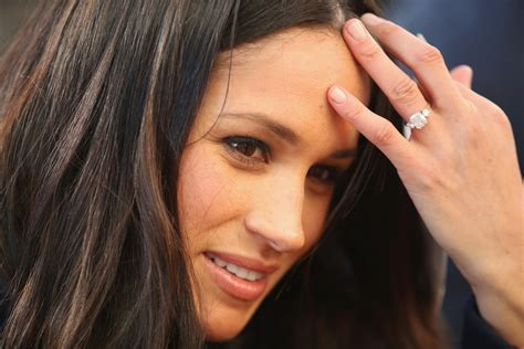 s nose is meghan markle s nose why it is so popular and how much will it cost you