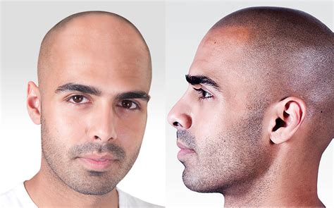 skin disease loss of pigment with hair loss scalp micropigmentation pyure natural wellness