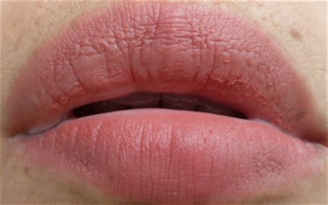 wart on lip effective and discreet treatment for hpv of warts press releases