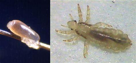 lice detection ultraviolet magnifier light managing lice safely no nit policies nebraska