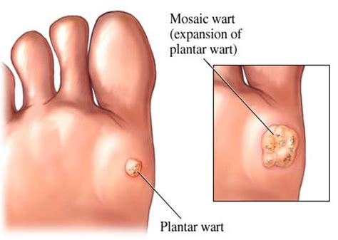 Plantar Warts How To Treat A Planters Wart